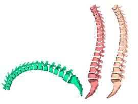 2015 Spine