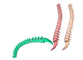 2017 Spine